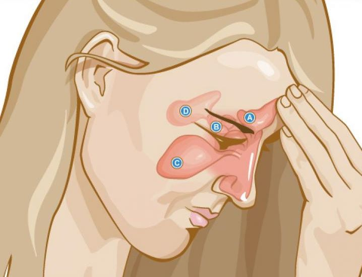 Best Ways to Use Apple Cider Vinegar Against Sinus Infection | Uses
